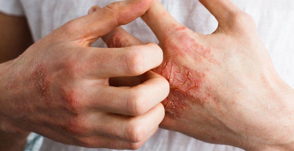 coceira-dermatite-atopica